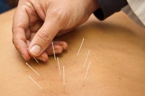 acupunturaEspalda